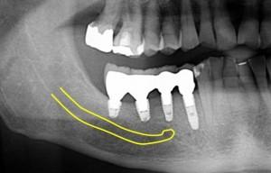 右側パノラマ写真下顎管
