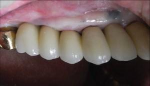 左奥歯インプラント1