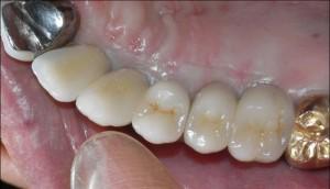 左奥歯インプラント2