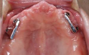 無口蓋義歯フレーム