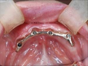 義歯のフレーム