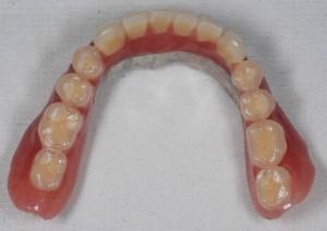 義歯上写真