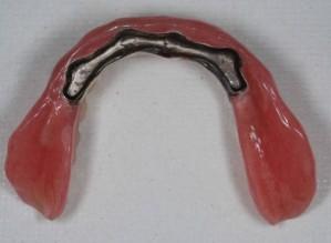 義歯内面写真