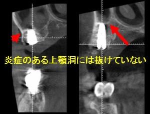 術後上顎洞2