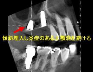 術後上顎洞3